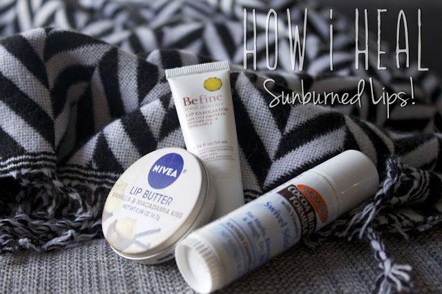 How to heal sunburned lips!