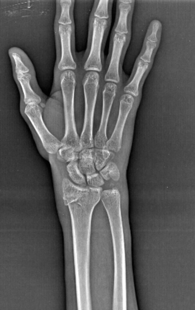 smith fracture radiology - 645×1024