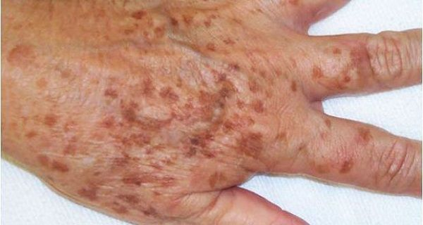 Age spots (Lentigo senilis or Lentigo solaris) are like pigmented spots. Age spots are small, flat, dark spots on the skin (bright brown or black in color) which usually appear on the hands, face and cleavage or some other areas exposed to sunlight. They mostly appear on skin parts which are exposed to sun, like…