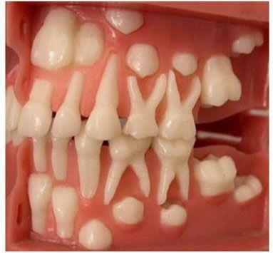 Permanent Teeth Erupting Behind the Primary Teeth