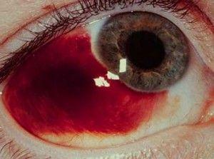 Trauma tumpul pada mata bisa mendorong mata ke belakang sehingga kemungkinan merusak struktur pada permukaan (kelopak mata, konjungtiva, sklera, kornea dan