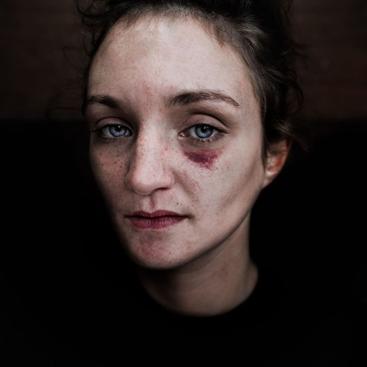 Lee Jeffries Photograph The Homeless People By Becoming One Of Them