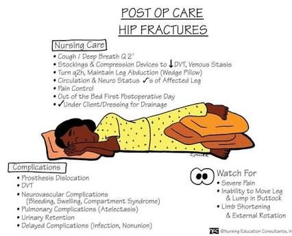 791 best Nurses Notes Tools images on Pinterest Nursing schools - nursing assessment form