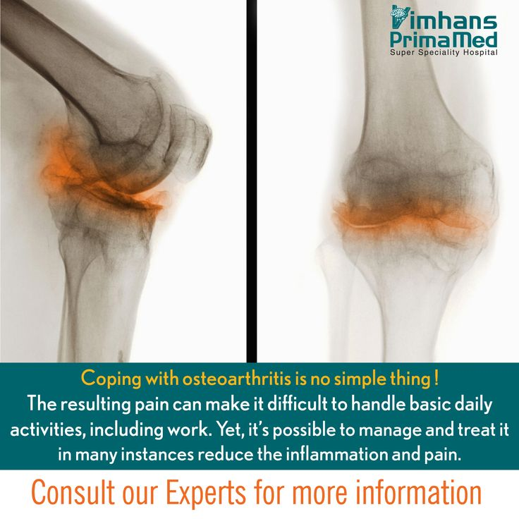 Coping with osteoarthritis is no simple thing. The resulting pain can make it difficult to handle basic daily activities, including work. Yet, it's possible to manage and treat it—and in many instances reduce the inflammation and pain. Consult our Experts for more information. 011-66176617   1800 11 1801