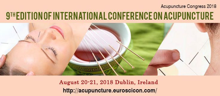 9th Edition of International #Conference on #Acupuncture August 20- 21, 2018 Dublin, Ireland