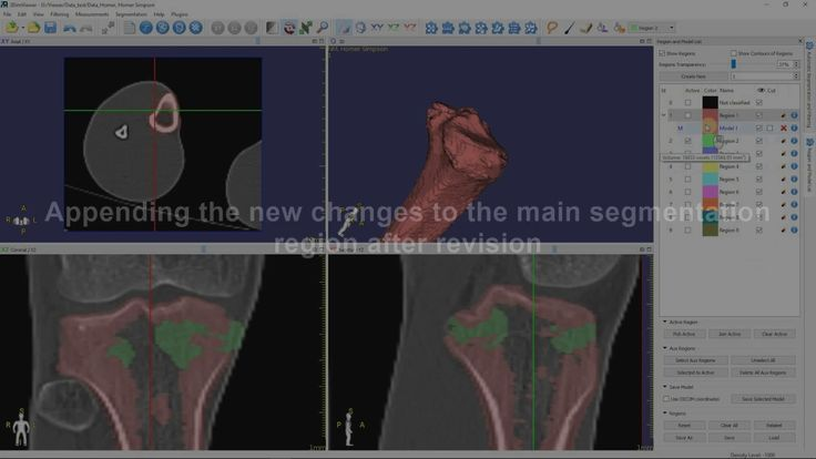 3DimViewer 3.x Tutorial: Bone segmentation from a CT scan and 3D model c...