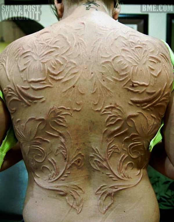 Healed Scarification | Body Modification | Pinterest