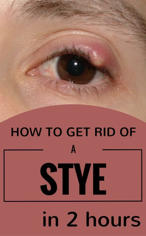 """Anyone confronted with a stye, at least once in his life. It's a painful and not a very pleasant sensation to have a huge """"pimple"""" on your eyelid. Sometimes it appears on your nostril, as well. Anyhow, the feeling is not so great and the causes are of stye's appearance are given by poor hygiene …"""