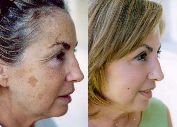 Luminesce skin care. Do you want this result look at my site. https://beautyenzen1.jeunesseglobal.com/en-US/luminesce/