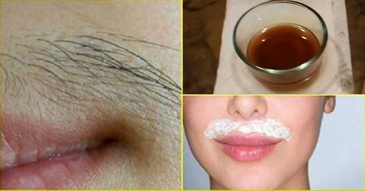 If you are like most people, especially women, your answer is probably 'YES!' Luckily, this post will show you how to remove unwanted hair forever with just two simple ingredients. Unwanted and excessive body hair on face, hands, feet, and back is one of the biggest cosmetic problems people face with on a daily basis.…