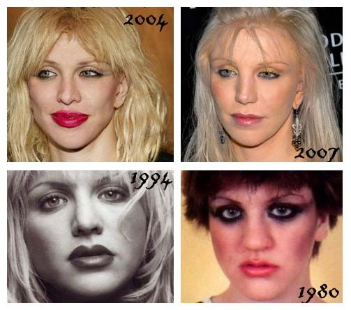 Courtney Love plastic surgery.  Holy SHIT