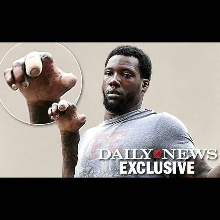 Giants Jason Pierre-Paul hand after the fireworks accident. SMH he has until November 17th to get in shape for the season or it might be over for him. He will be a free agent next year.