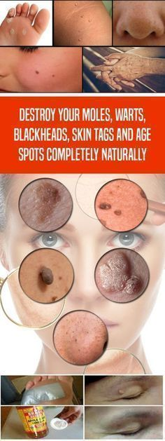 Almost everyone has some skin problems no matter what the cause is. Because of the sensitivity of our skin we tend to have skin tags, moles, skin breakouts or clogged pores. This usually happens when we have some hormonal imbalance or many changes in our