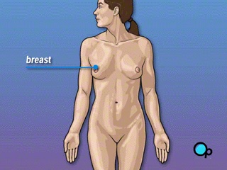 Radical Mastectomy is the removal of the breast and surrounding tissue. In most cases, mastectomy is required in order to remove cancerous tissue from the body. - PreOp Patient Education
