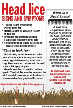 Not everyone has every symptom...keep an eye out for for any 1 of these...Head Hunters the Head Lice Specialist