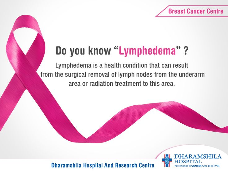 "Do you know ""Lymphedema"" ? ‪#‎Lymphedema‬ is a health condition that can result from the surgical removal of lymph nodes from the underarm area or radiation treatment to this area. When lymph nodes are removed or damaged, the ‪#‎lymphatic‬ system is unable to work as effectively in that area and lymph fluid can build up, causing swelling in the arm, hand or chest area. ‪#‎breastcancer‬ ‪#‎cancer‬ ‪#‎breastsurgery‬  http://www.dhrc.in/breast-cancer-centre-after-treatment-lymphedema.html"