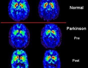 Qué es la sustancia negra, cómo se forma, para qué sirve, funciones, y su patología asociada: La enfermedad de Parkinson.