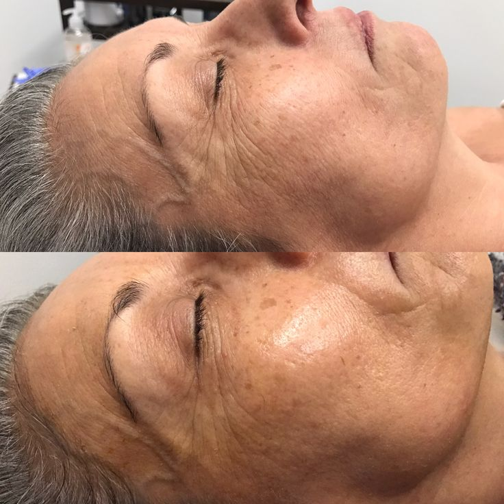 Dermaplaning w/ Microcurrent Infusion  Before & After
