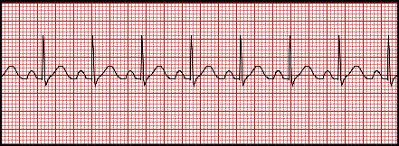 Sometimes recognizing sinus tachycardia can give us fits. What? Sinus tachycardia? One of the most basic rhythms? The discussion that follows will highli