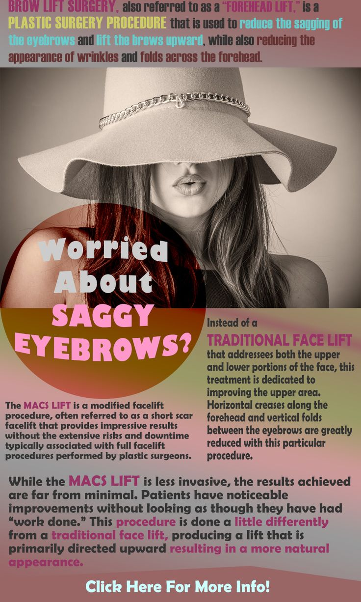 Brow lift surgery is one way for patients to improve their appearance dramatically. The MACS lift is done under local anesthesia and patients are awake yet comfortable throughout their treatment. #surgery #facelift #eyebrows #wrinkles ##skincare #aging #STOCKTON #lodi #ELKGROVE