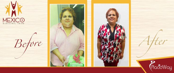 Before & After Bariatric Surgery Testimonial Mexicali, Mexico #bariatric #weightloss #mexico