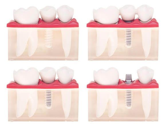 10 Teeth Implant Myths Busted: Facts to Break Misconceptions