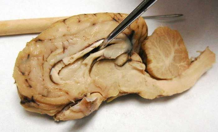 Sheep Brain Dissection with Labeled Images | Sheep, Brain ...