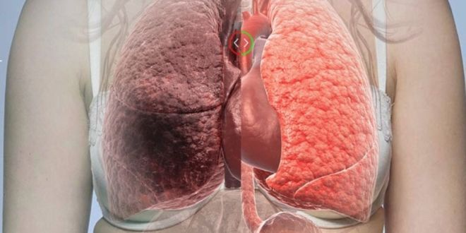 WHAT CAUSES LUNG CANCER: You Will Not Believe When You Read What This is About!