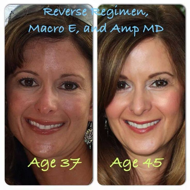 Rodan + Fields products are incredible. The number of amazing before and afters proves just that. Rock on RF!  To shop:   www.ehberry.myrandf.com 918-407-6756 elizabethhberry@gmail.com