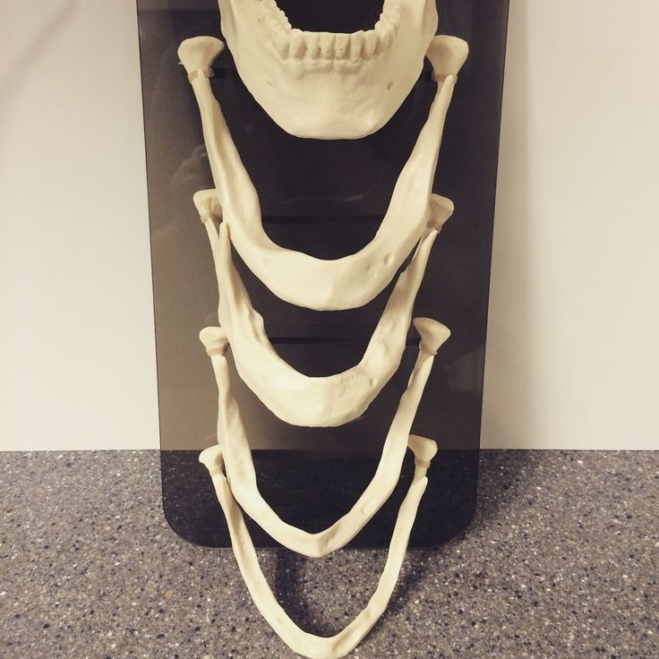 We use this model in our Grand Dental Group offices to explain how a jawbone thins and weakens without teeth or dental implants. #granddental www.granddentalgroup.com