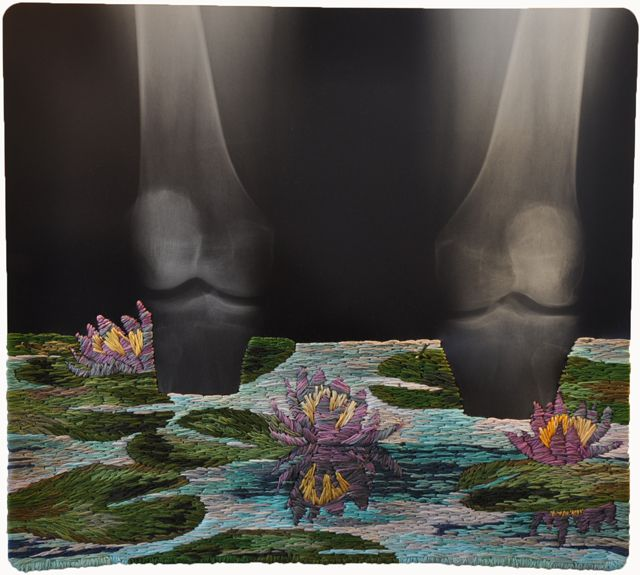 It's all about redefining materials for artist Matthew Cox, as he layers embroidery on top of medical x-rays.