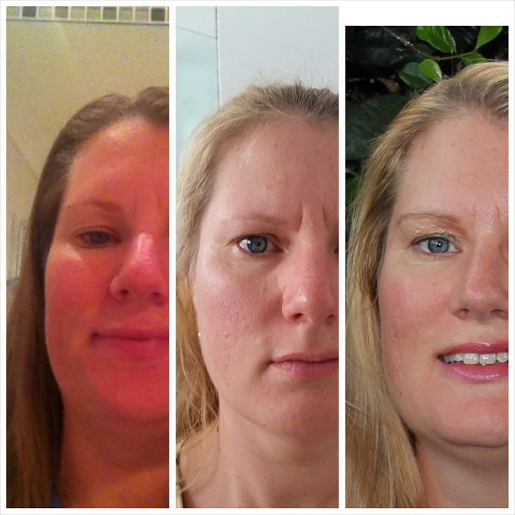 This is Me. I love it when a product just works like they said it will on real people.  I'm fresher, brighter and have more even skin than ever before. Nucerity Distributor ID 261844