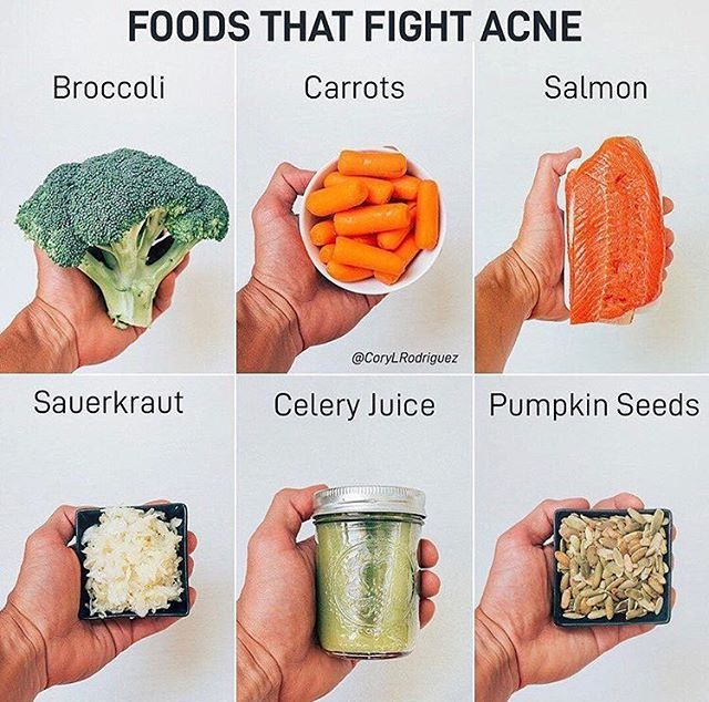 Our Skin Health Is An Outward Reflection Of Our Internal Health When We Have A Lusterless Complexion One T Foods That Fight Acne Health And Nutrition Food