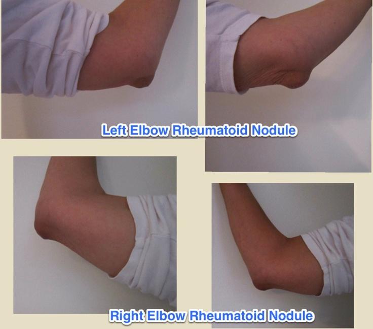 Natural Remedies For Rheumatoid Nodules