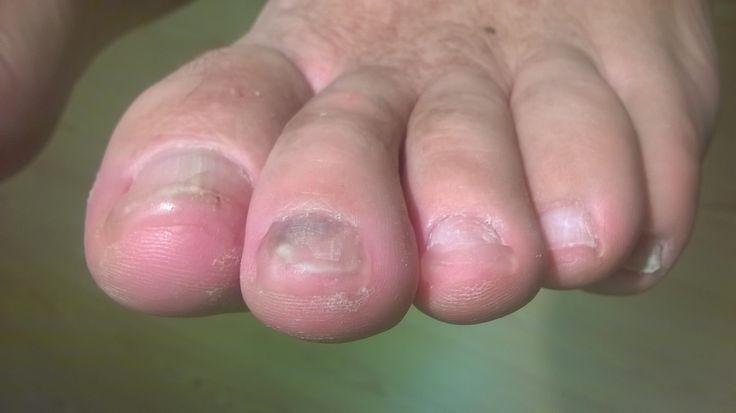 Jalkojen terveydenhoitoon syventynyt lähihoitaja valmistaa tarvittaessa esim. syöpähoidon vaurioittaman kynnen tilalle kynsiproteesin. Kynsiproteesi kasvaa oman kynnen mukana pois, eikä vaadi huoltoa niin kuin esim. kauneudenhoitoon tarkoitettu geelikynsi. Kuvassa kynsiproteesi isovarpaassa.