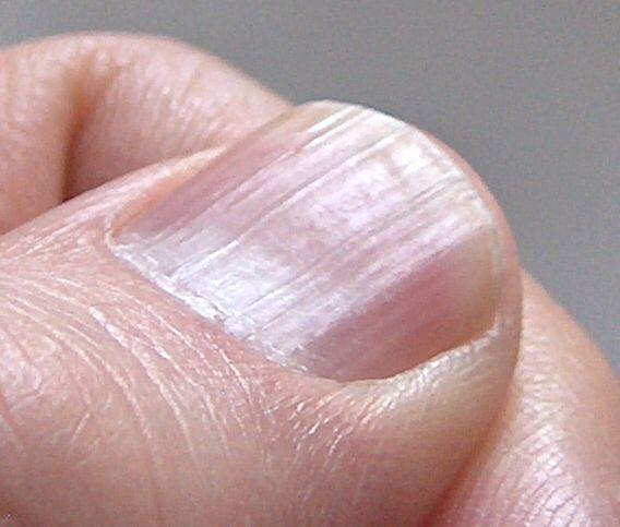You have ridges in your fingernails?  What does it mean?  https://www.medicalnewstoday.com/articles/319867.php?utm_content=buffer079d8&utm_medium=social&utm_source=pinterest.com&utm_campaign=buffer #skincare #dermatology #treatment #medical #symptoms #diagnosis #skin #nails