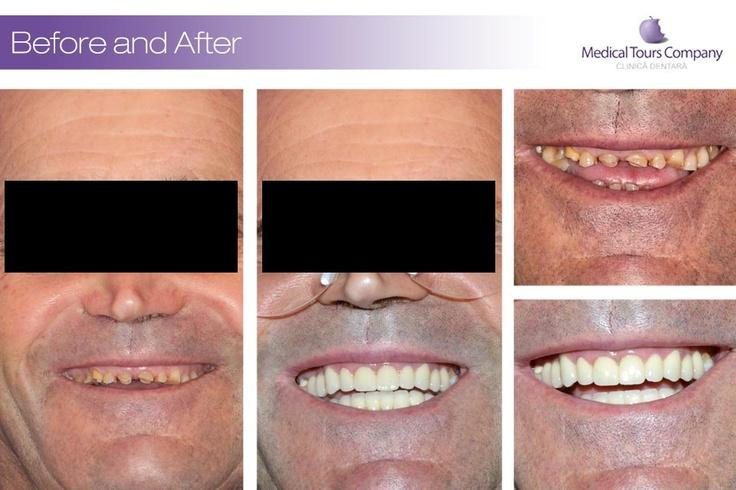 Cazuri 6 | Clinica dentara Medical Tours Company
