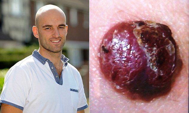 Man's horror as holiday sunburn leads to life-threatening cancer - Deadly diseases