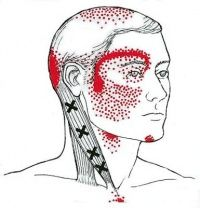 Cervicogenic Headache-SCM one of the most prominent trigger points in NMT