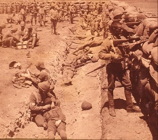 I love this picture from the Boer War but can't work out if its staged. It looks real with the casualties