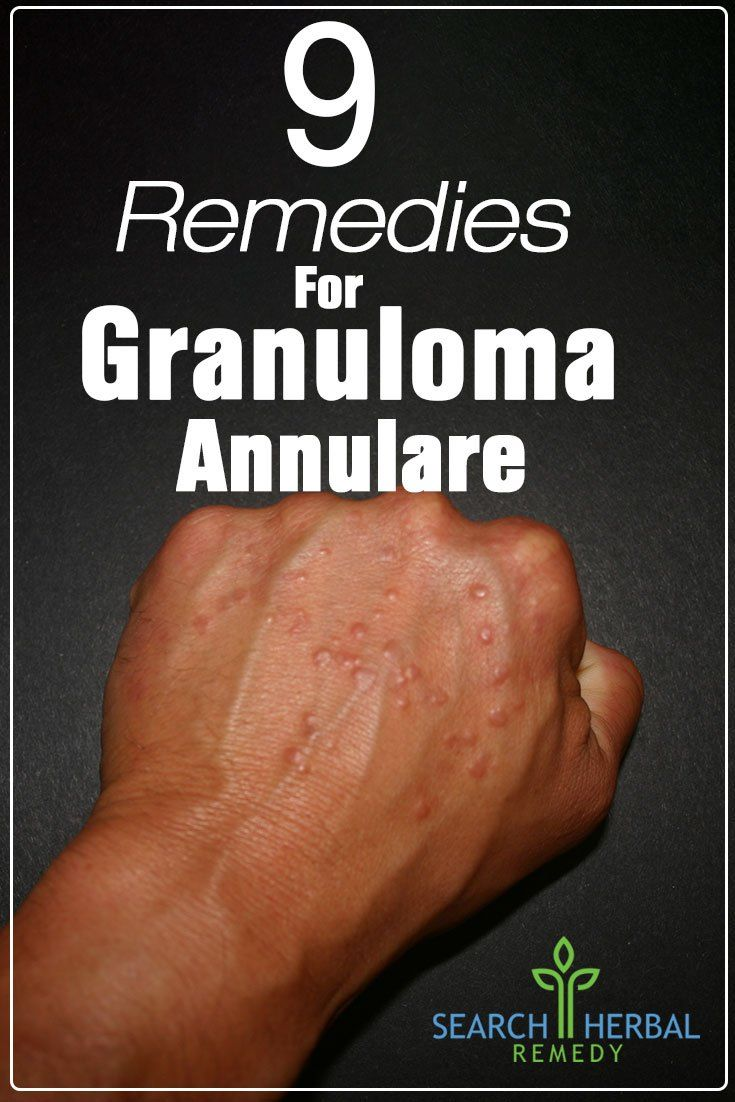 9 Remedies For Granuloma Annulare
