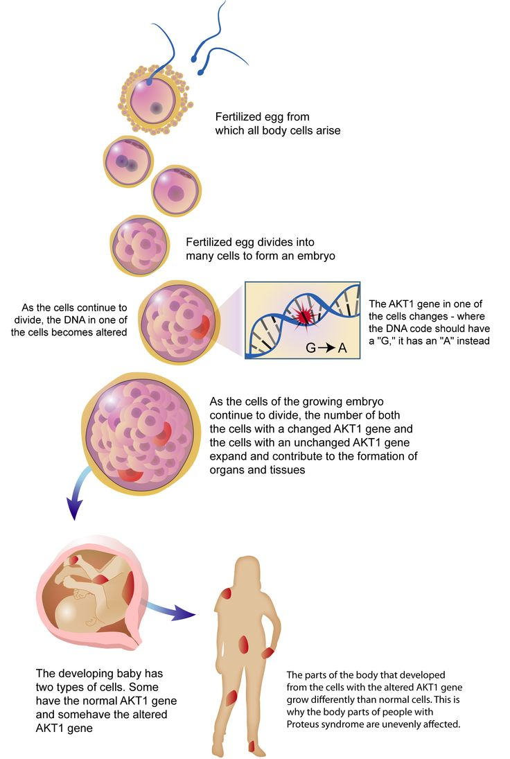 Molecular explanation of Proteus Syndrome.  Explanation: activating mutation in AKT1 in a percentage of cells.