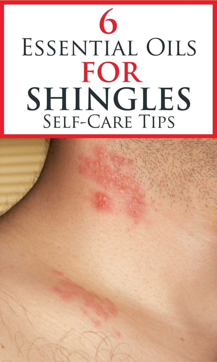 6 Essential Oils For Shingles Self Care Tips In 2020 Essential Oils For Shingles Essential Oils For Skin Essential Oils For Headaches