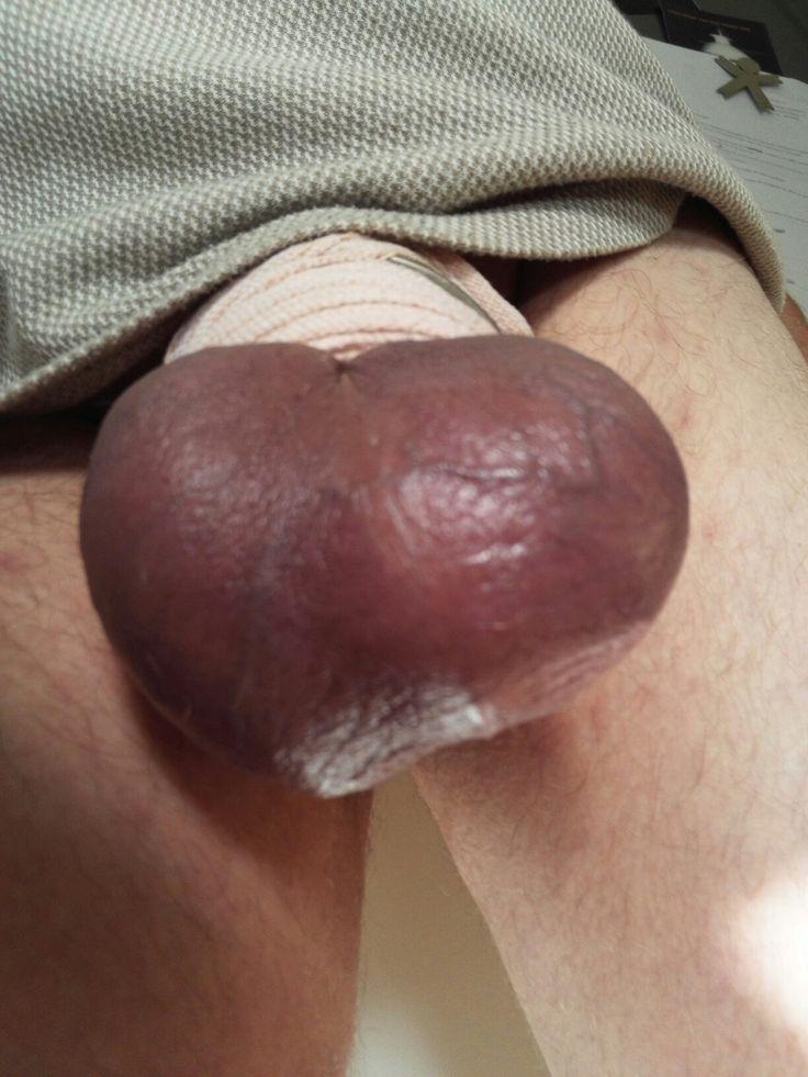 My banded balls