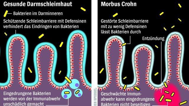 So entsteht Morbus Chron: Für Großansicht bitte klicken (Quelle: Eduard Stange und Jan Wehkamp)