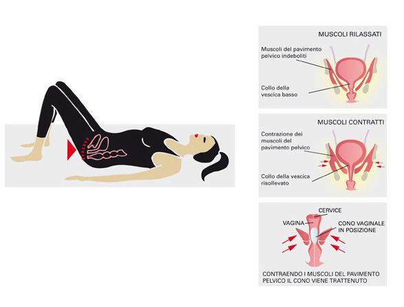 Esercizi per rafforzare il pavimento pelvico (esercizi di kegel) Spiegazione