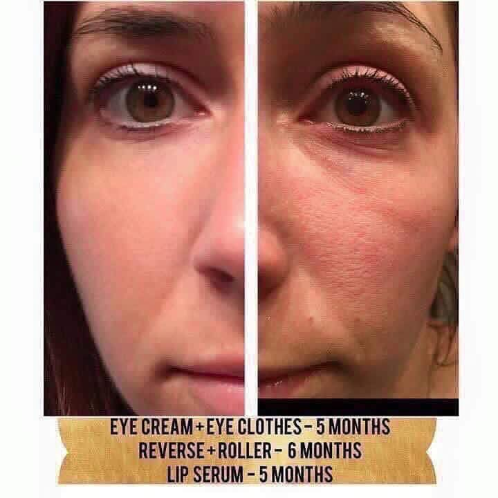 """WOW look at that texture change!!This is fellow consultant Danielle Yemma's results:  """"RIP my eye cream. You served me well for  5 months!  I knew you were working because my eyes just don't look tired anymore. But SHUT THE FRONT DOOR look at my before and after! And ummm can we talk about pores! My face apparently looked like an orange peel before and I had no idea! And my lips that are cut off but they're fuller, pinker and less lines! So thankful I found my Rodan + Fields"""""""