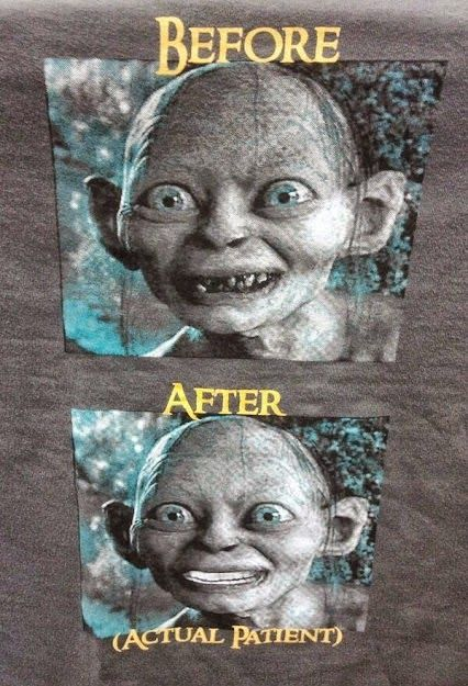 Do you like this case? Dentistry can fix any smile!   #Dentistry #Dentaltown #Hygiene Google+