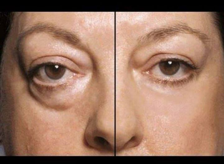 Instantly Ageless is AMAZING! The results people are experiencing just keep rolling in! This is in just 2 minutes!! Happy Customers!   When you couple awesome products with a top notch company and a team with unparalleled leadership that takes the time to make sure you are successful, it's a no brainer! Timing is everything and we are right on time. To order yours today go to: http://InstantlyAgeless.amoreyouthfulyoutoday.com/