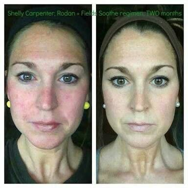 R+F Soothe gives calm, nourished, glowing skin. gwendab2@gmail.com